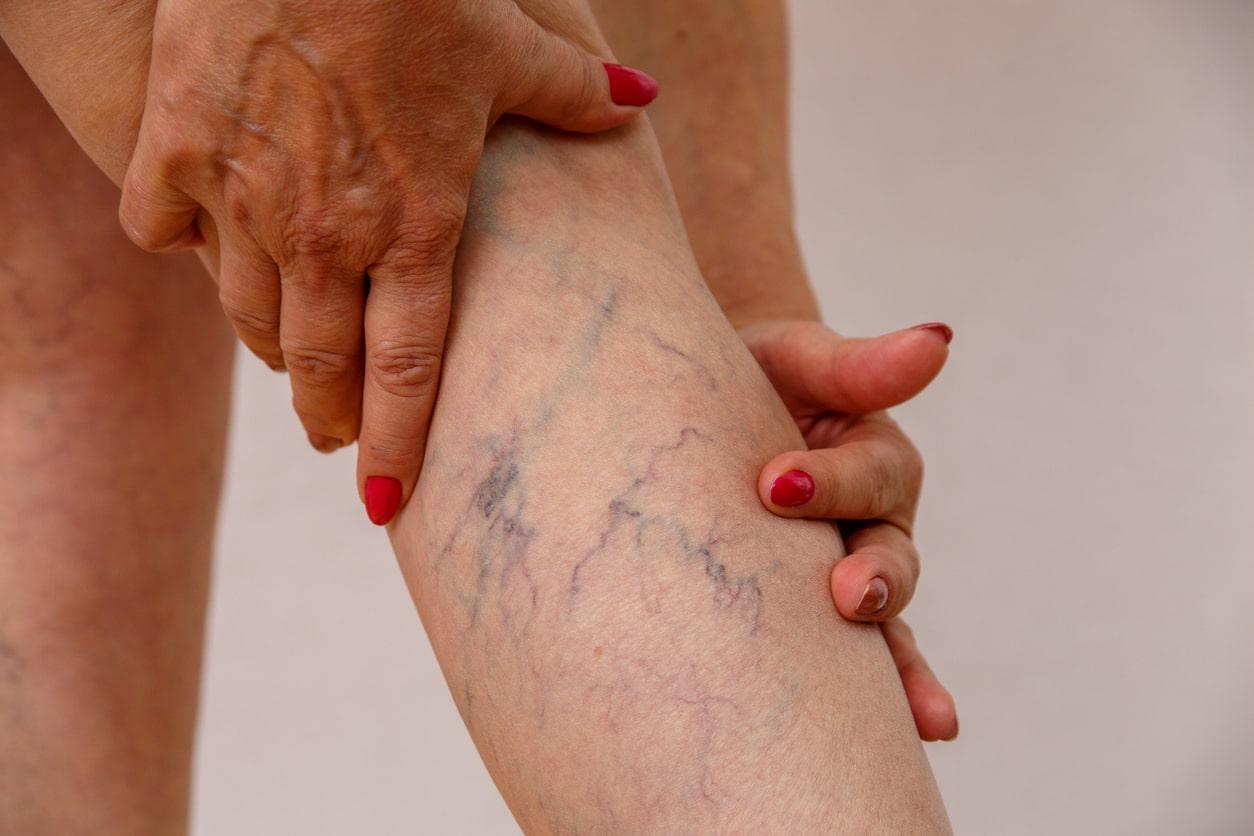 problemas vasculares